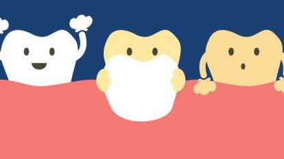 Faccette-dentali-estetiche-sw